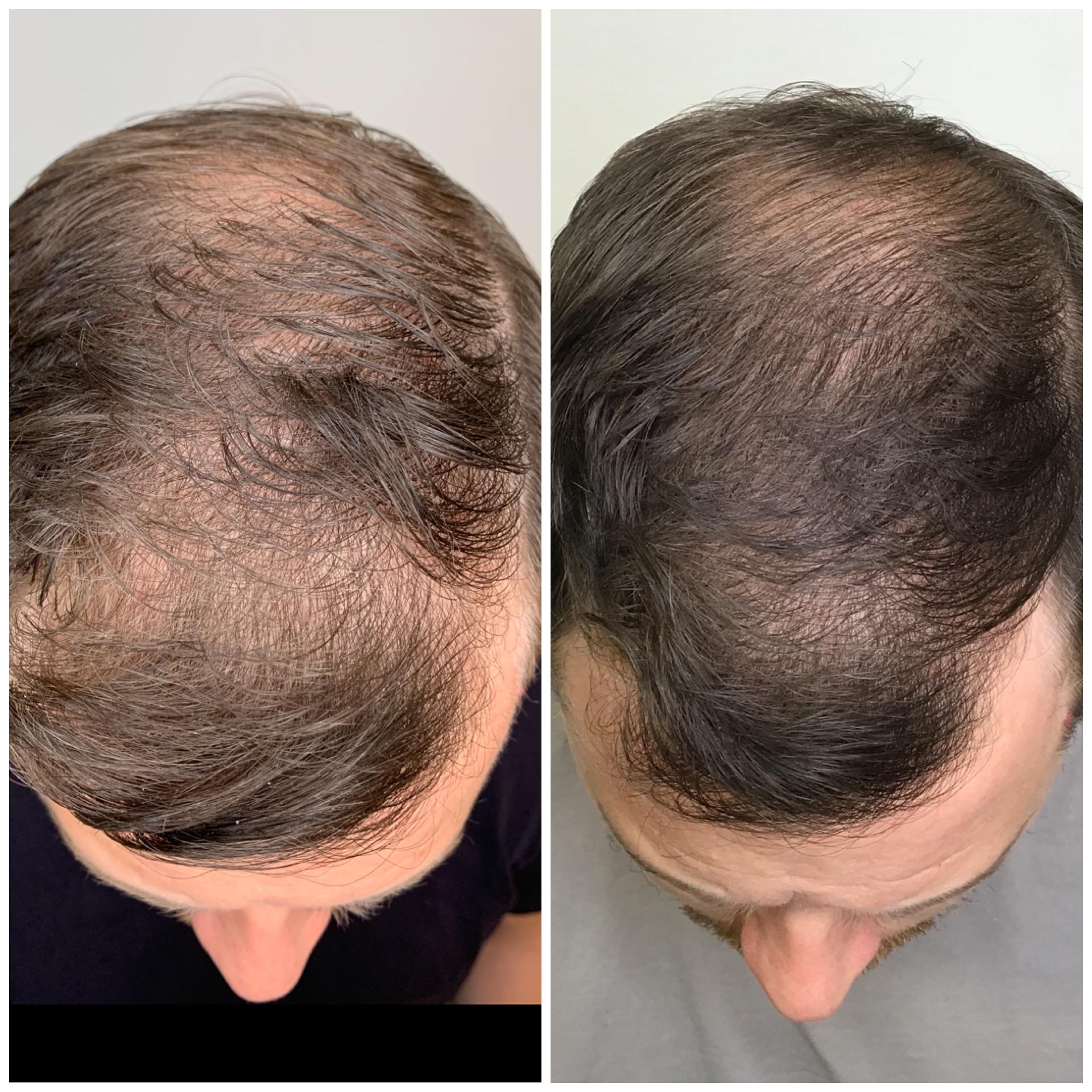 prp behandling hår flashback